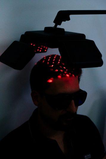 laser par